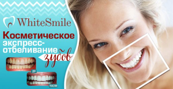 Процедура косметического экспресс-отбеливания зубов в WhiteSmile