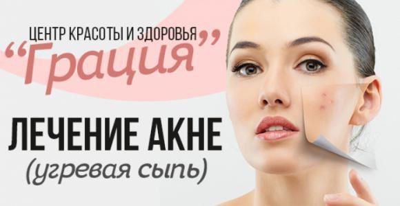 Скидка 60% на косметологическую услугу- лечение акне