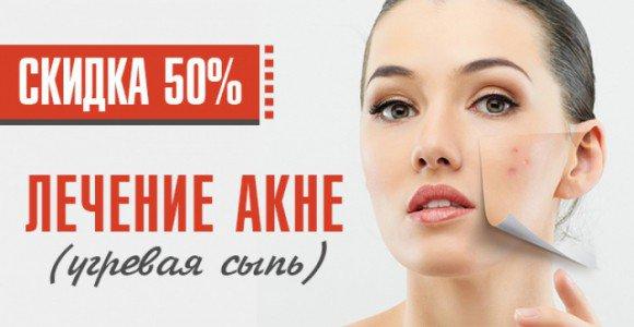 Скидка 50% на косметологическую услугу- лечение акне